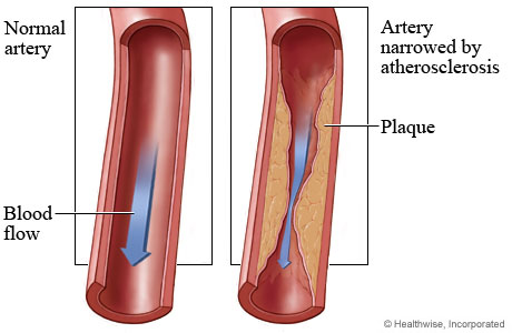 Blood flow in normal coronary artery and decreased blood flow in artery narrowed by plaque build up