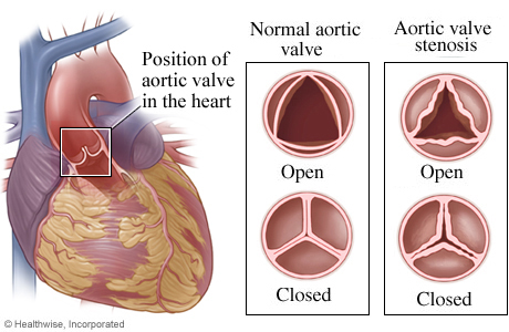 Location of aortic valve in heart with detail of normal open and closed valve and one with stenosis