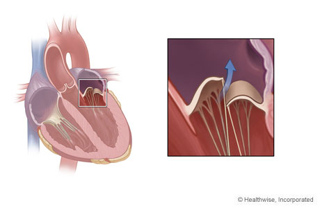 Location of mitral valve in the heart and detail of mitral valve regurgitation