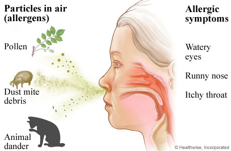 what allergies cause sneezing