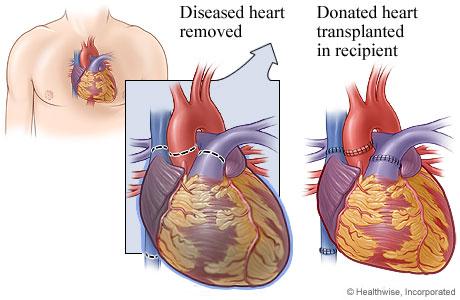 Diseased heart showing where blood vessels were detached and transplanted heart showing where blood vessels were attached