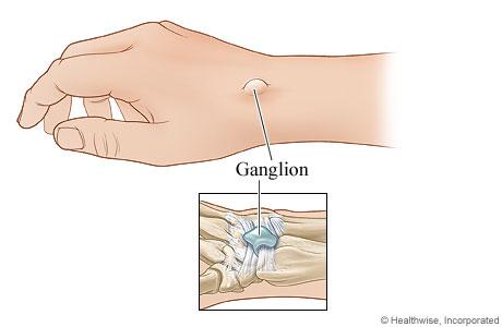 Dorsal wrist ganglion