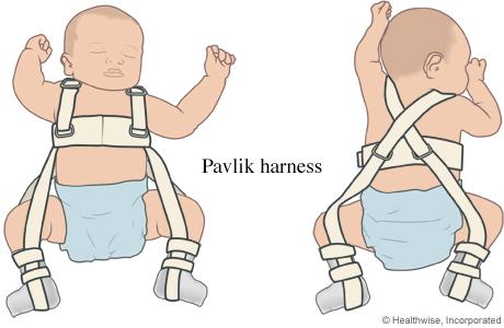 Pavlik harness on a baby