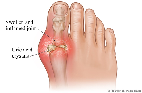 Putting Your Foot Down on Gout - Gout Treatment | UPMC Pinnacle