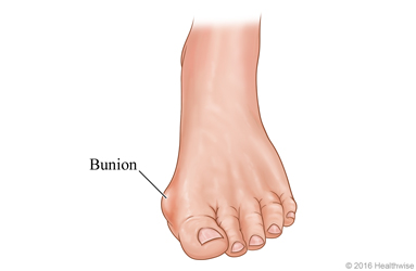 "Bunions: Not Just Another ""Bump"" in the Road of Aging 