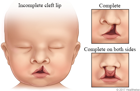 Faces of babies, showing three kinds of cleft lip: incomplete, complete, and complete on both sides