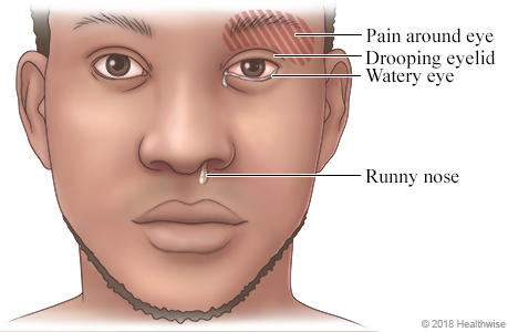 Face of person showing symptoms of a cluster headache