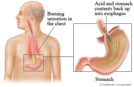 Heartburn from stomach to esophagus
