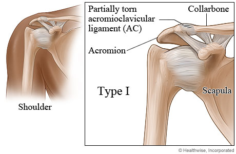 Type I shoulder separation