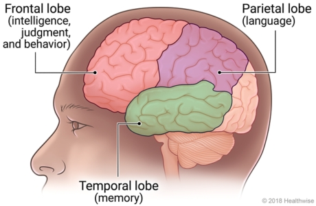 Areas of brain affected by Alzheimer's and other dementias, including the frontal lobe, parietal lobe, and temporal lobe