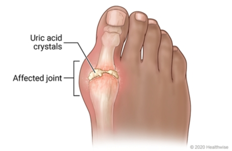 Putting Your Foot Down On Gout Gout Treatment Upmc Pinnacle